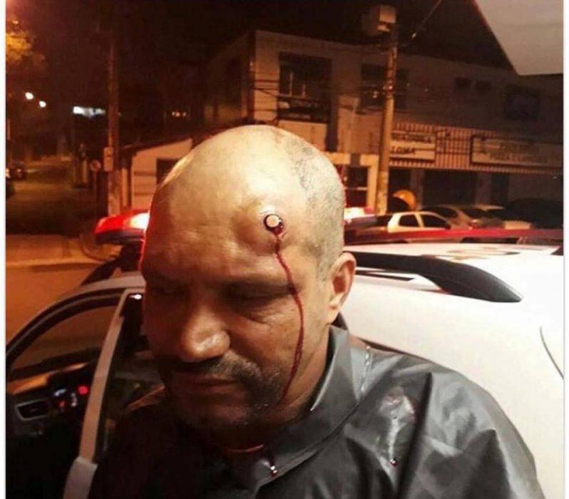 Hombre sobrevive a un disparo en la cabeza